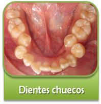 dientes-chuecos