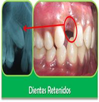 dientes-retenidos