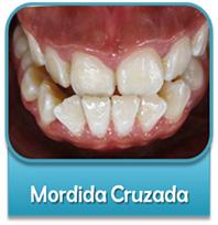 dientes-salidos
